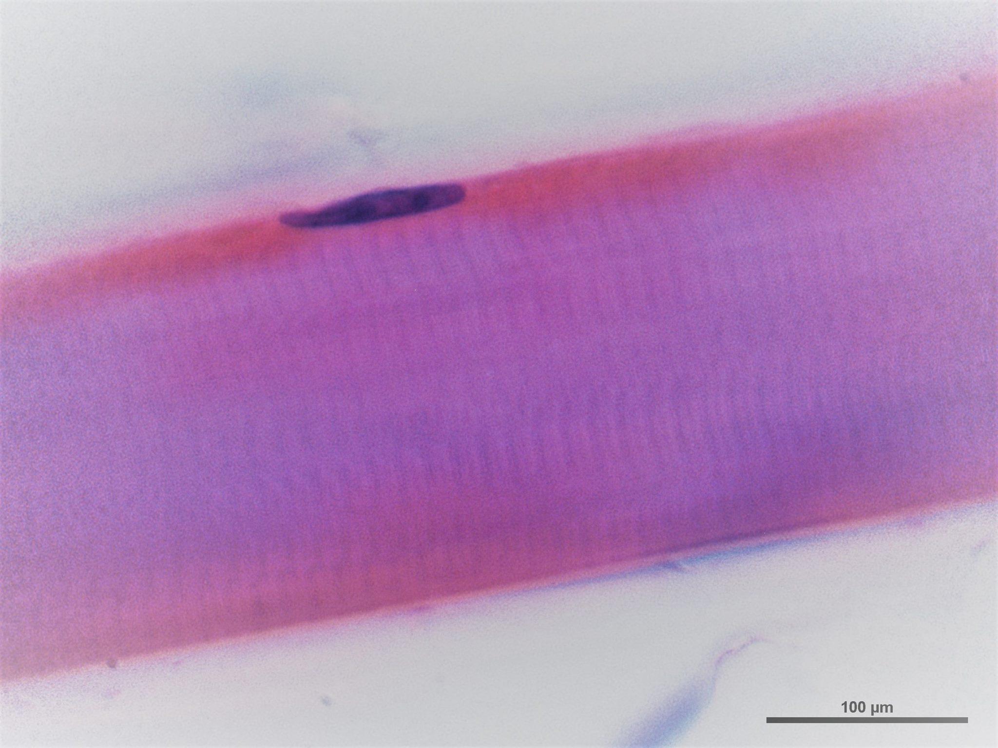 Célula muscular estriada esquelética | Departamento de Histología y ...