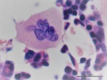 Megacariocito en la médula ósea. Hematoxilina-Eosina.