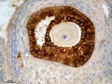 Folículo ovárico antral