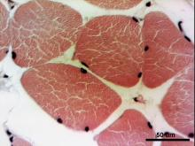 Fibras musculares estriadas esqueléticas