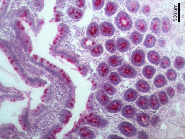 Mucosa del intestino delgado. PAS-Hematoxilina