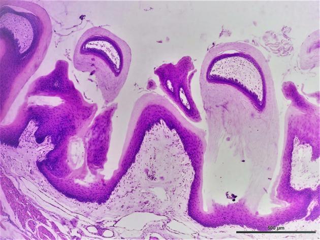 Mucosa lingual